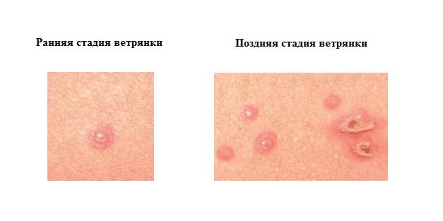Стадии заболевания