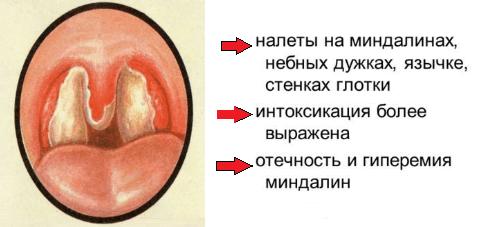 Появление налета на миндалинах