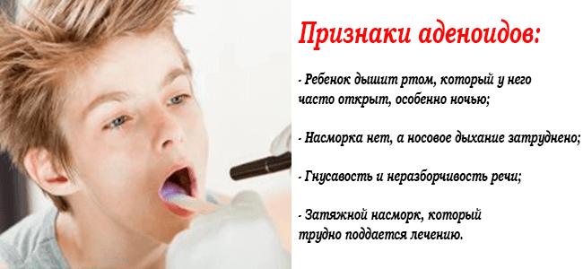 Обследование ребенка на признаки аденоидов