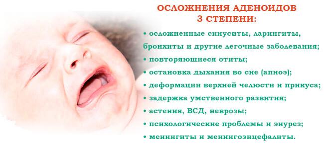 Осложнения аденоидов 3 степени у ребенка